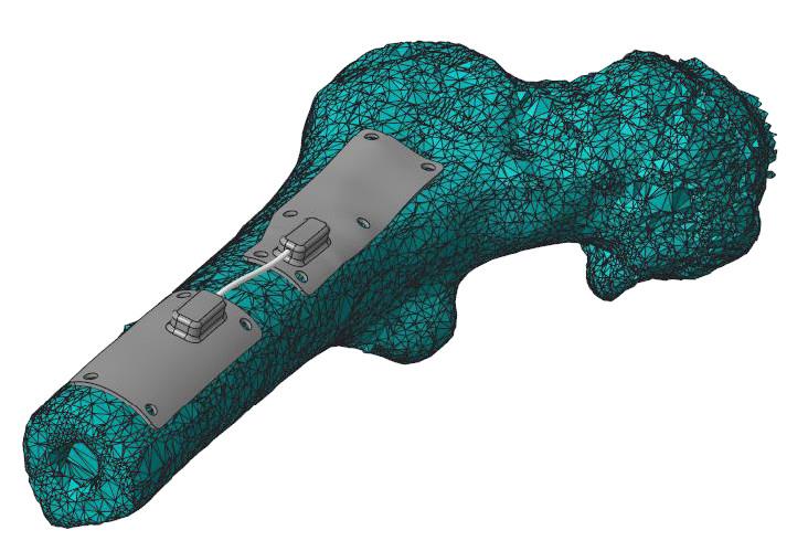 Model kości podudzia odtworzony za pomocą Creo Reverse Engineering (REX) i połączony z parametrycznymi modelami płytek.